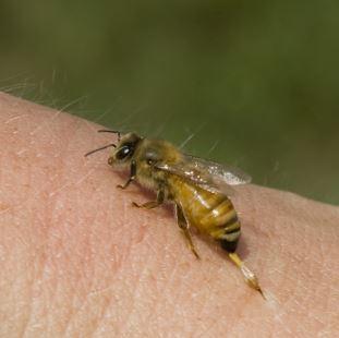 Укусы жалящих насекомых