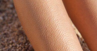 Что такое гусиная кожа
