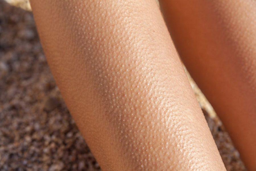 Как избавиться от гусиной кожи на попе?