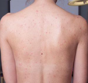 Как вылечить угревую сыпь на спине в домашних условиях thumbnail