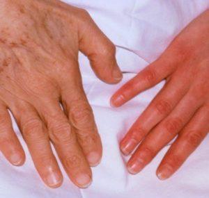 Повышенные лимфоциты в крови у женщин: когда такое может быть