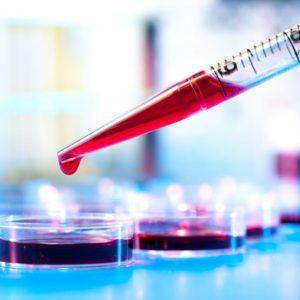 Анализ крови на мочевую кислоту: как, где и когда нужно сдавать