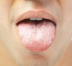 Серый налет на языке: причины