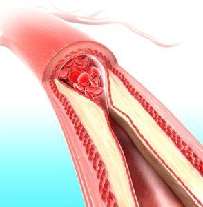 Ишемический колит: симптомы и методы лечения