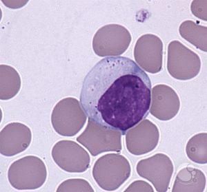 Лимфоциты: определение, виды, функции в организме и норма показателя