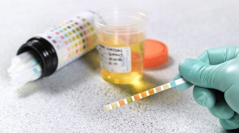 Главные причины ацетона в моче у ребенка, взрослого, беременных
