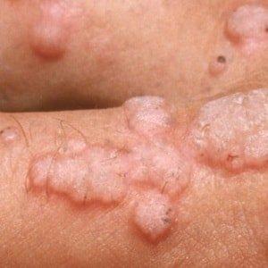 Каковы симптомы папилломы вируса человека у женщин