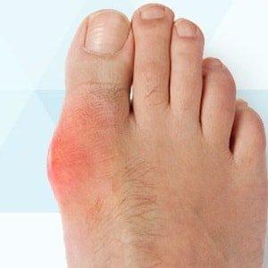 Способ применения желчи при косточках на ногах