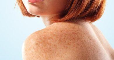 Чем лечить пигментные пятна на теле