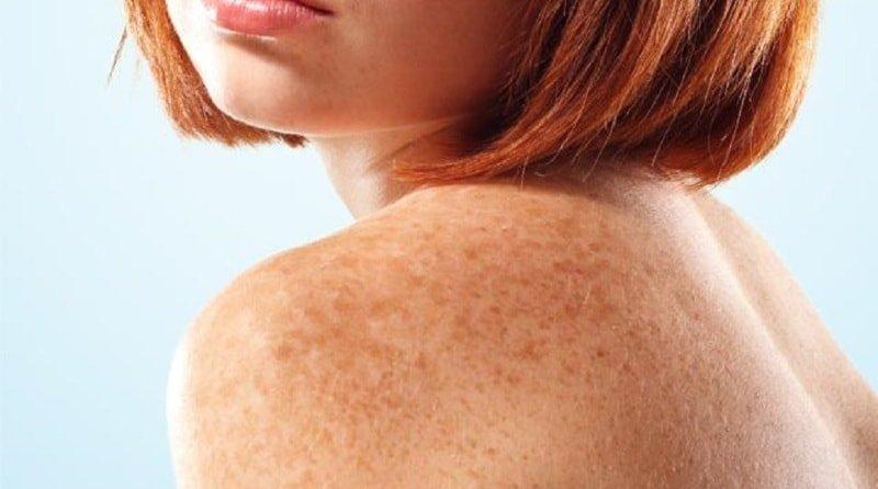 Пигментация — белое пятно на животе. Причины и лечение