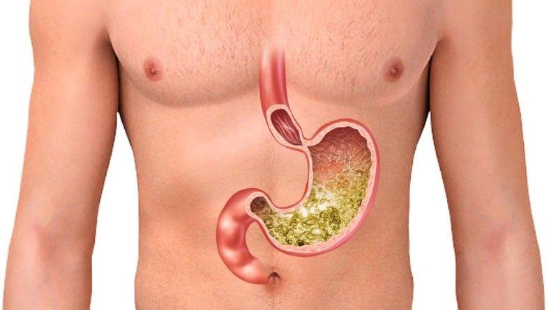 ТОП-6 препаратов для лечения повышенной кислотности желудка
