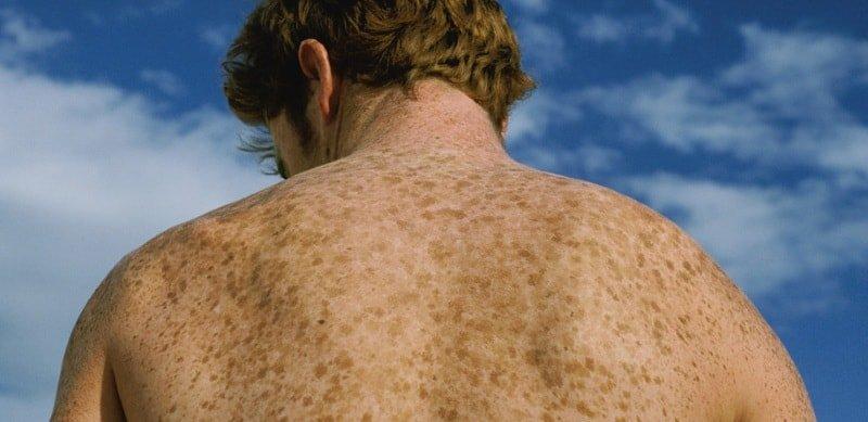 Пигментные пятна коже: какими бывают