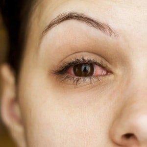 Боли в глазу при движении глазного яблока
