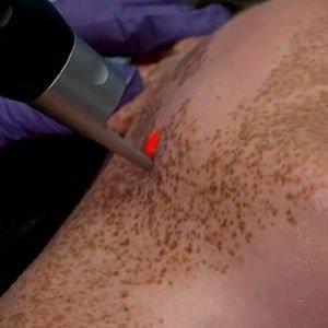 Чем лечить пигментные пятна на теле? 6 действенных способов