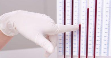 Что такое СОЭ (скорость оседания эритроцитов)
