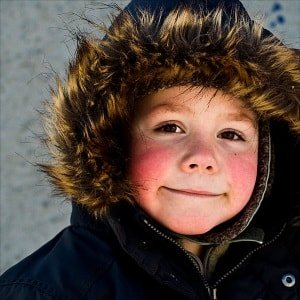 Почему у ребенка красные щеки и что делать