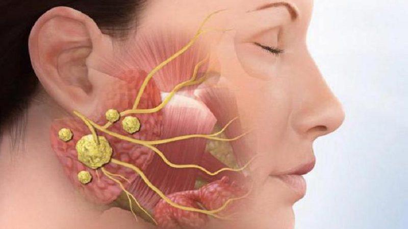 Забита слюнная железа симптомы. Чем опасна закупорка слюнной железы? Причины и симптомы закупорки слюнной железы.