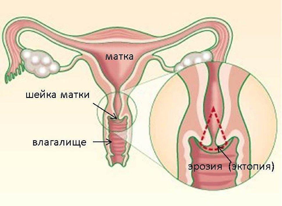Что такое эрозия шейки матки?