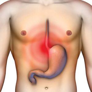 Заболевания схожие по симптомам с аппендицитом
