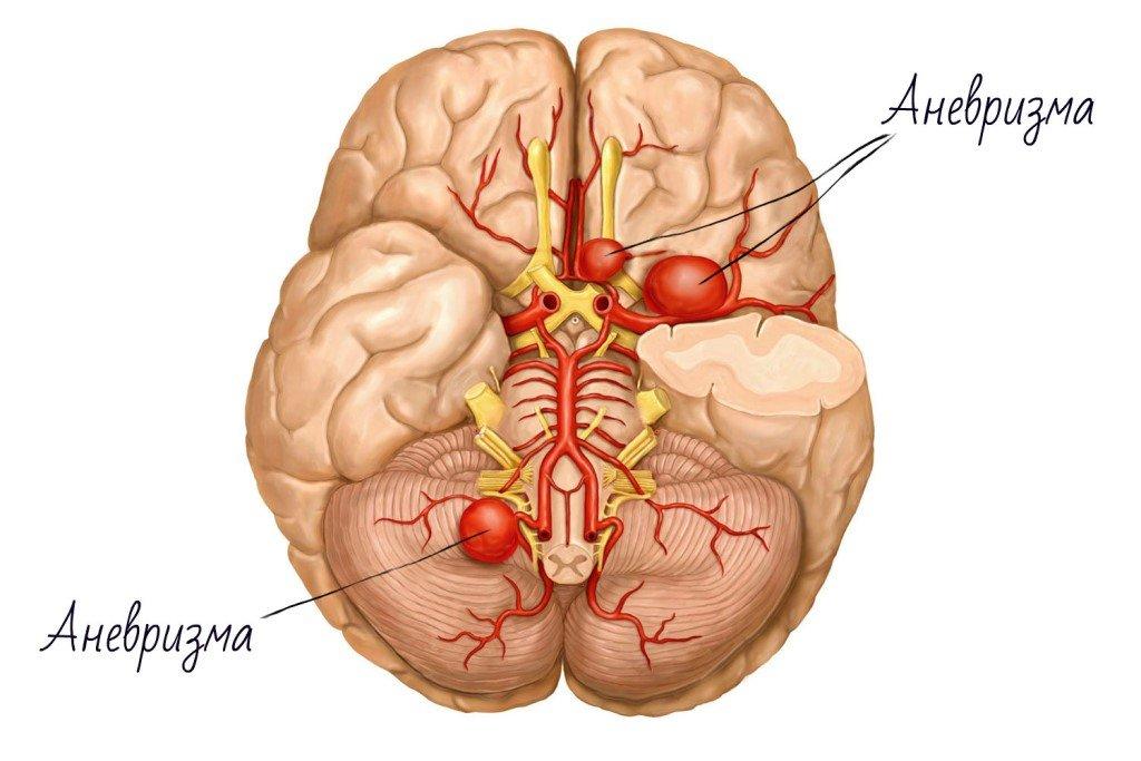 Аневризма сосудов головного мозга –  особенности, симптомы и лечение