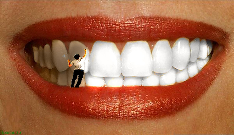 Отбеливание зубов в домашних условиях – лучшие способы