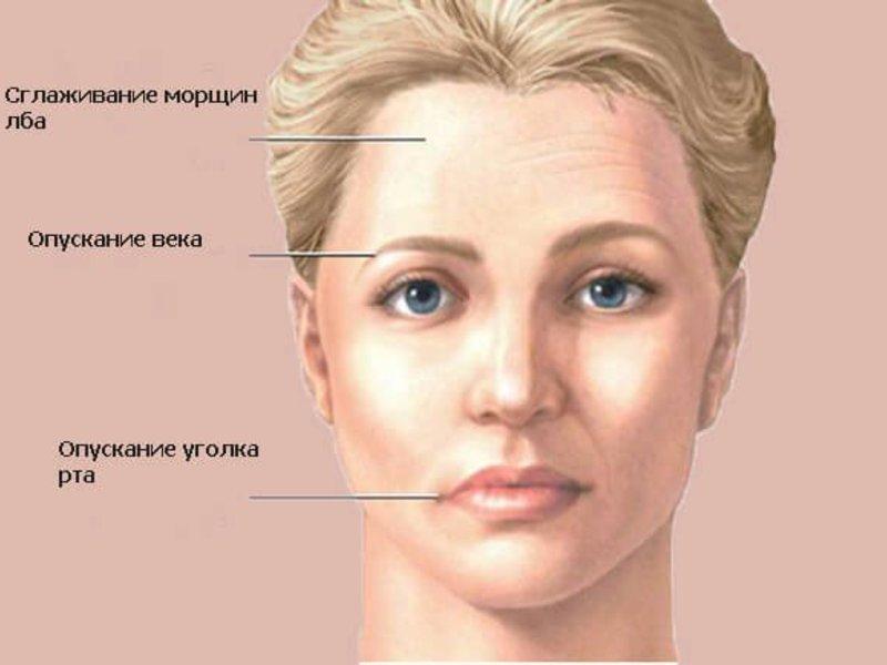 Воспаление тройничного нерва – что это?