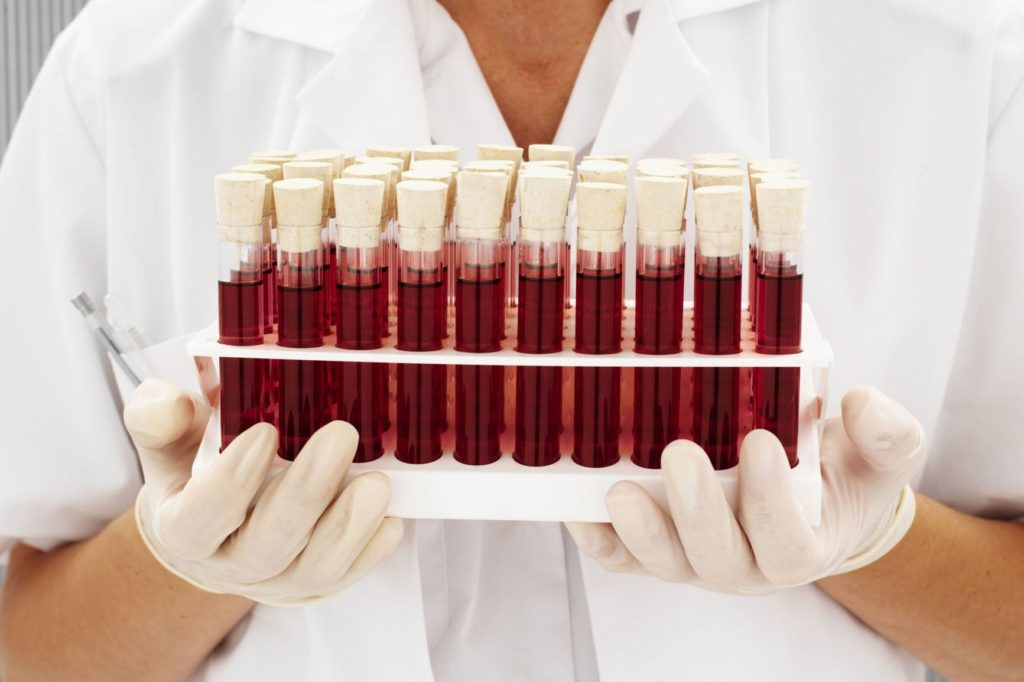 Типология групп крови