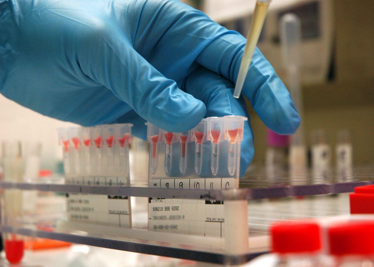 Совместимость крови при переливании: группы крови, проба, таблица