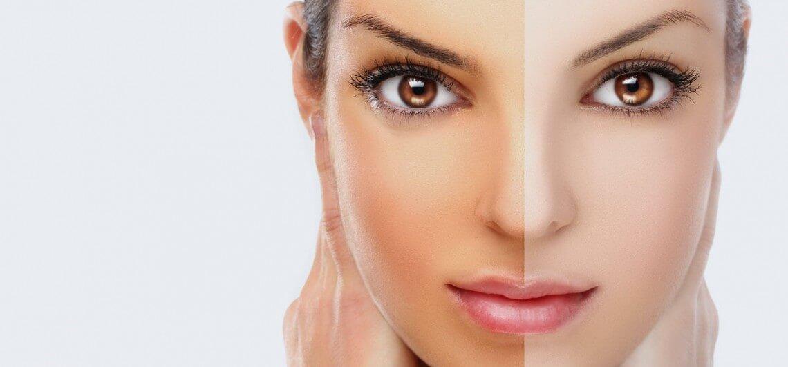 Как отбелить кожу лица в домашних условиях: маски