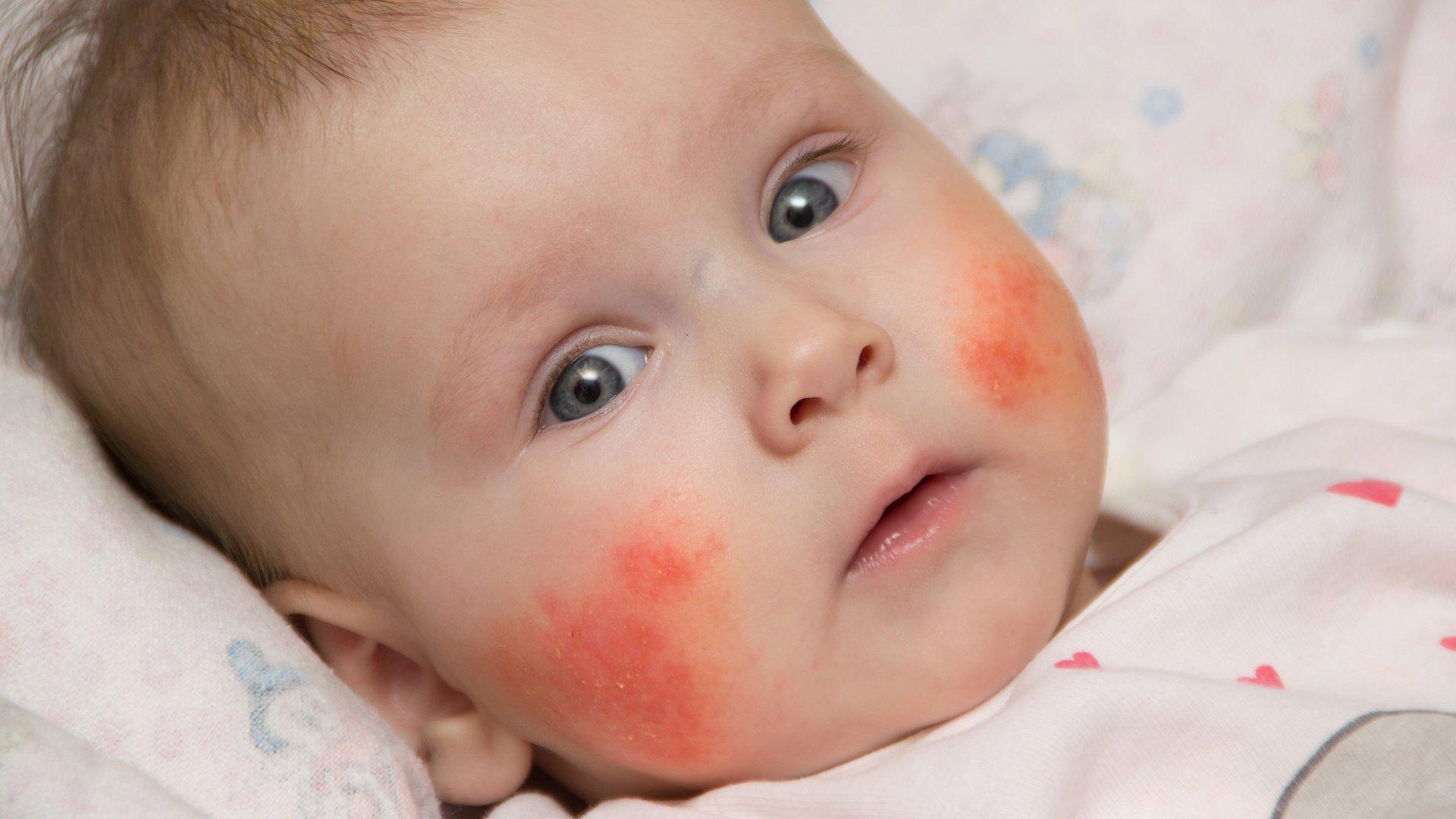 У ребенка щеки красные и шершавые причины лечение