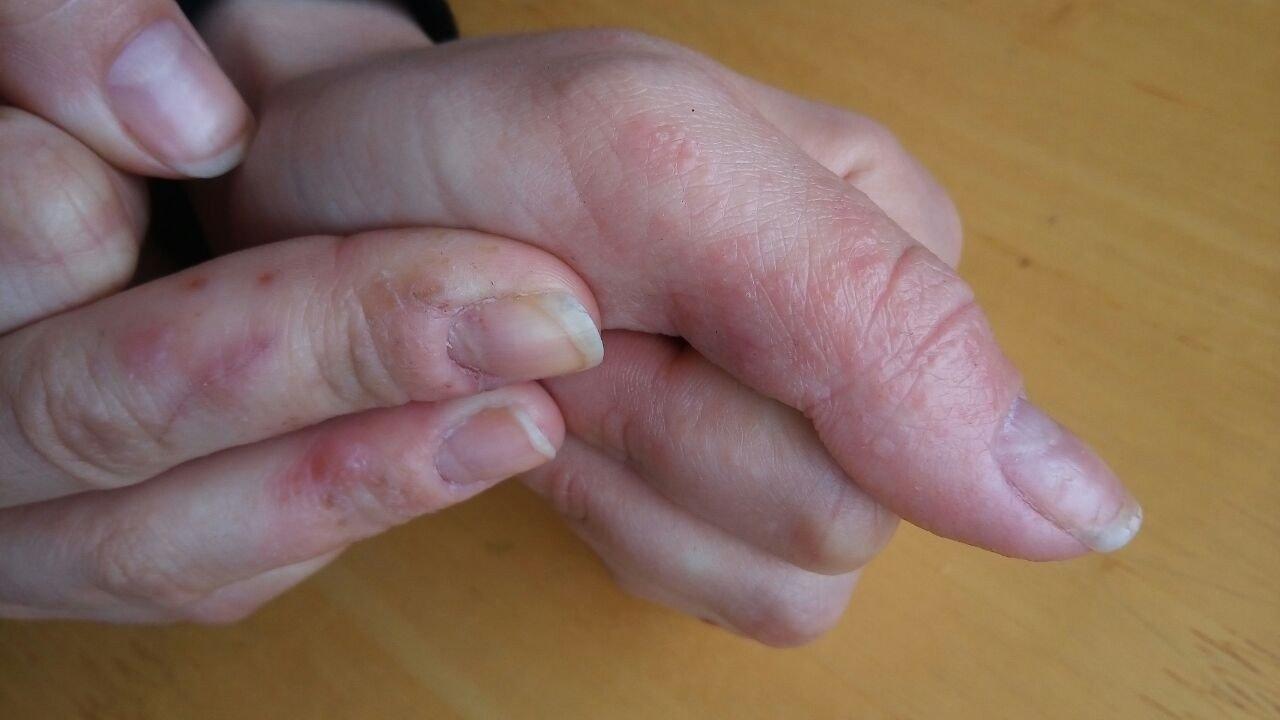 Трещины между пальцев рук