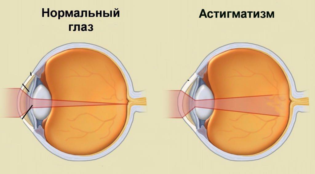 Зарядка для глаз при астигматизме
