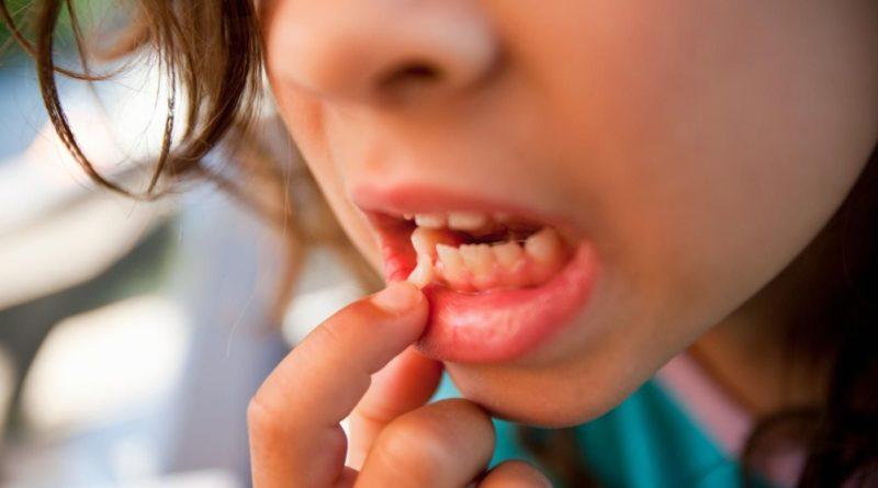 Выпадение зубов во сне