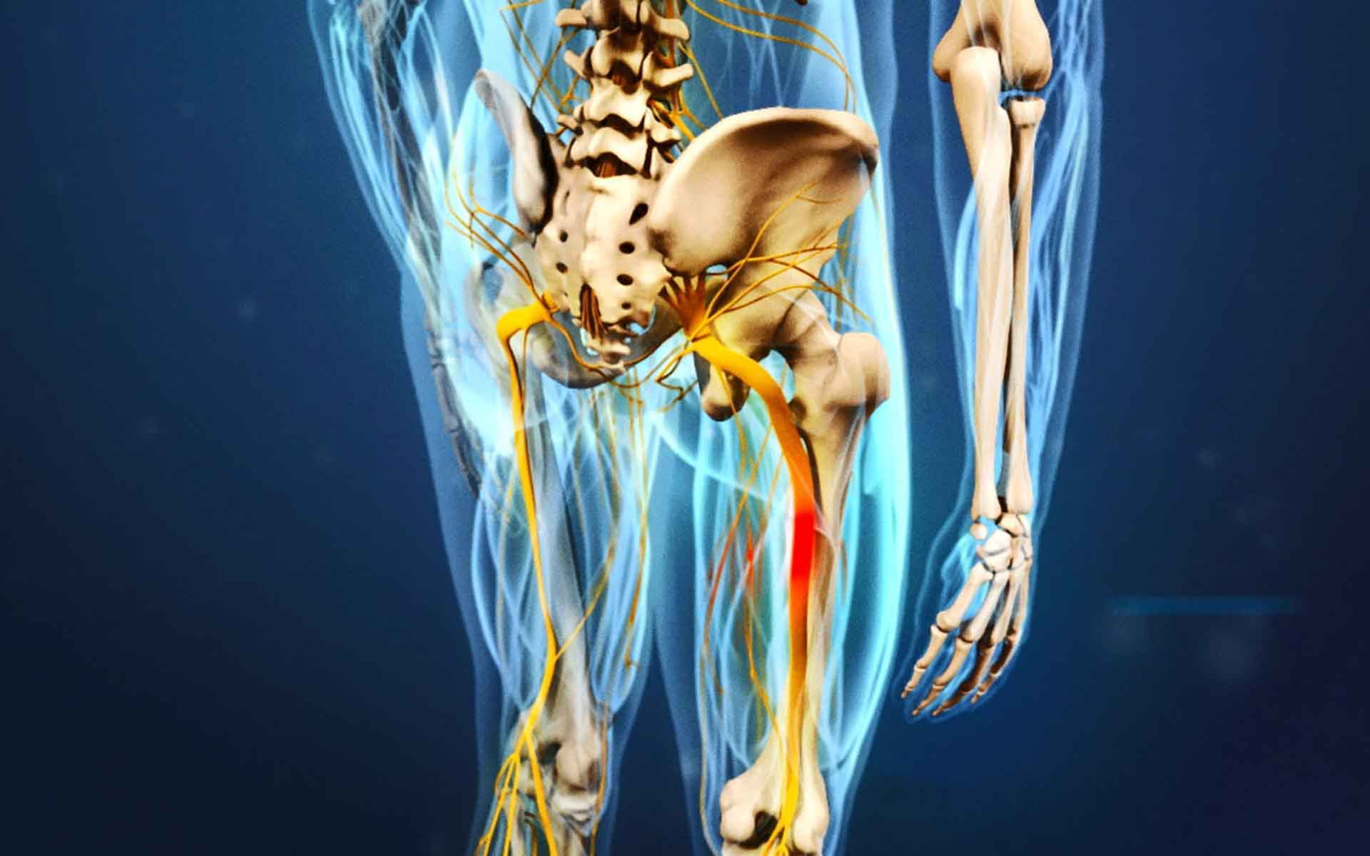 Болит седалищный нерв отдает в ногу
