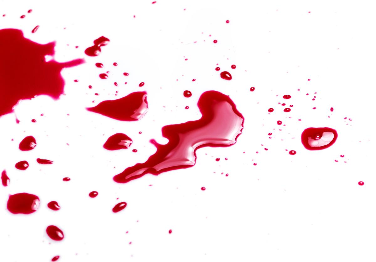 Увидеть свою кровь в сновидении что сулит это по известным сонникам