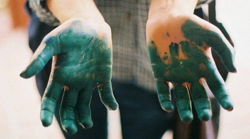 Чем отмыть зеленку с кожи